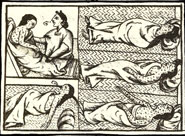 Pic 10: The Aztecs die in their thousands from smallpox; Florentine Codex Book 12