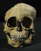 Fig 10:  Individuo infantil de entre 3.5 y 5 años de edad, procedente de la torre de cráneos adosada al Huei Tzompantli