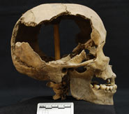 Pic 11: Skull from the Huei Tzompantli, found in the skull tower with articulated vertebrae